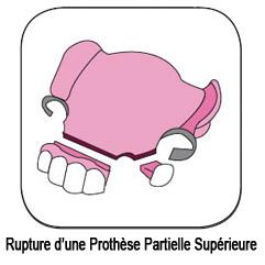 Dents d'une prothèse partielle cassées