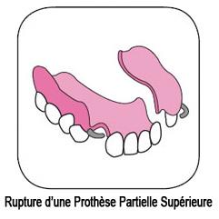 Réparation de prothèse dentaire partielle fracturée
