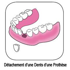 dent tombée