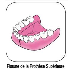 fissure d'une prothèse dentaire supérieure