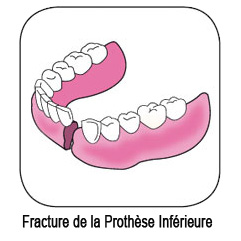 Prothèse dentaire inférieure fracturée - brisée