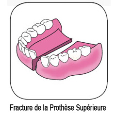 Prothèse dentaire supérieure fracturée