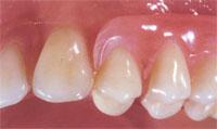 Prothèse dentaire partielle unilatérale en nylon