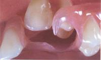 Crochet nylon sur une prothèse dentaire partielle