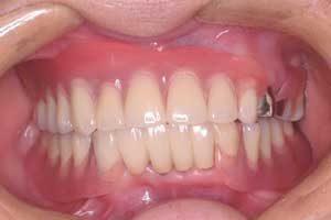 Prothèse dentaire partielle avec crochet nylon