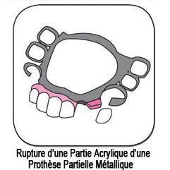 Réparation de prothèse partielle métallique